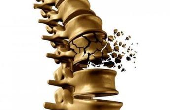 Остеопороз: симптомы, лечение, профилактика